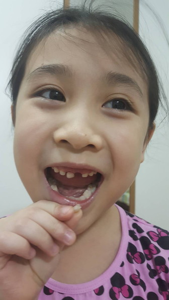 Milky tooth fairy (1)