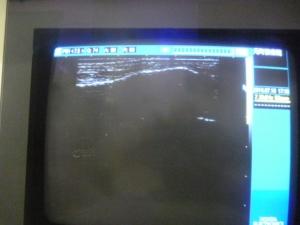 超音波観察