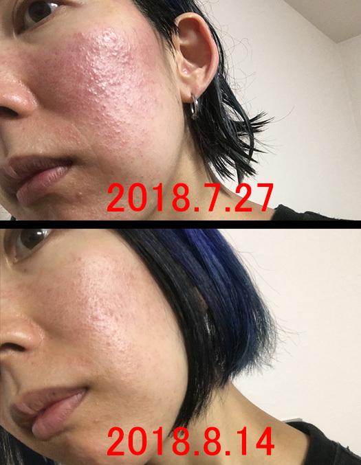酒さ様皮膚炎発症から1週間~1ヶ月の肌20180720