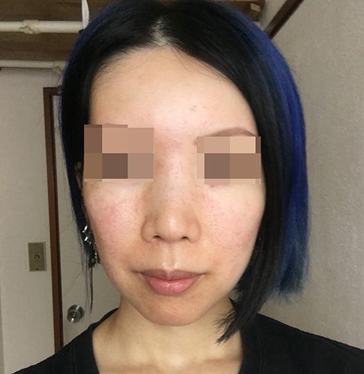 酒さ様皮膚炎発症から1ヶ月の肌20180720