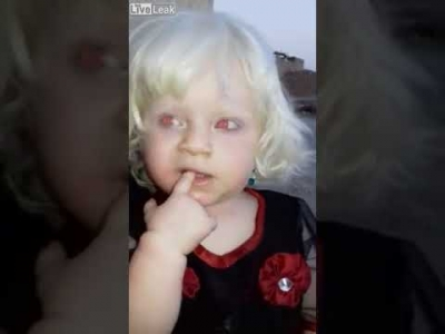 【衝撃!】世界に一人だけ?赤い目をした赤ちゃん!