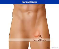 fem hernia