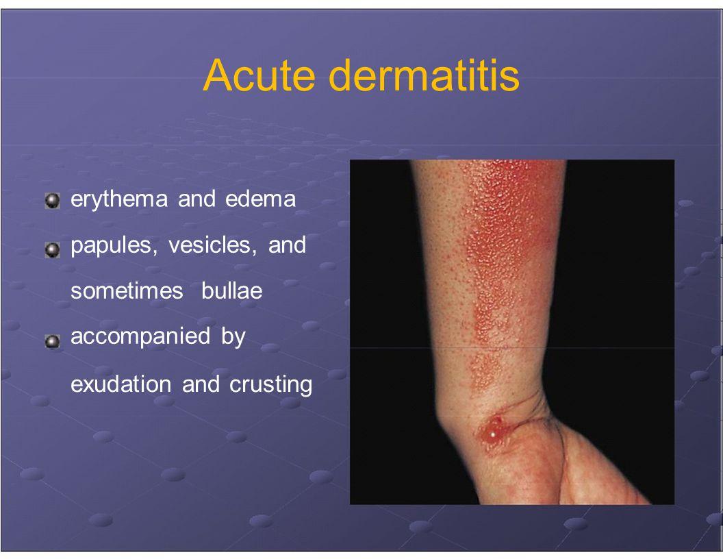 acute derma