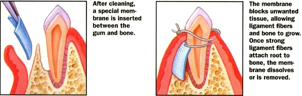 Bone-and-Tissue-Regeneration.jpg