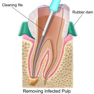 Endodontics.png
