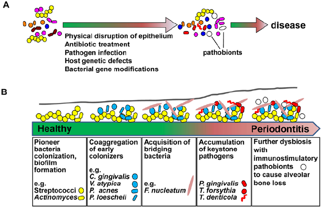 Role-of-pathobionts-and-dysbiosis-in-periodontitis-A-Pathobionts-and-associated.png