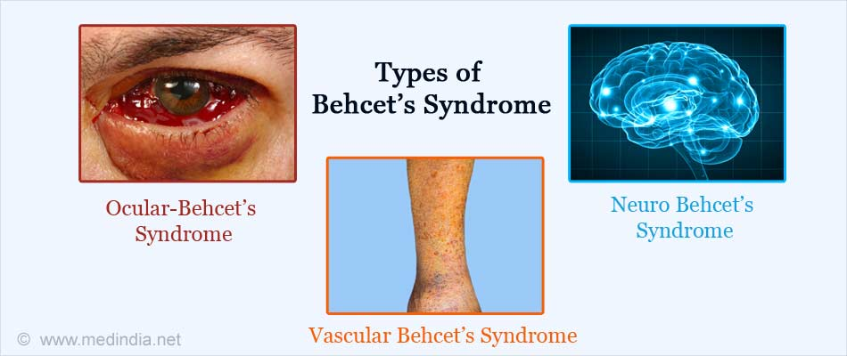 types-of-behcets-syndrome.jpg