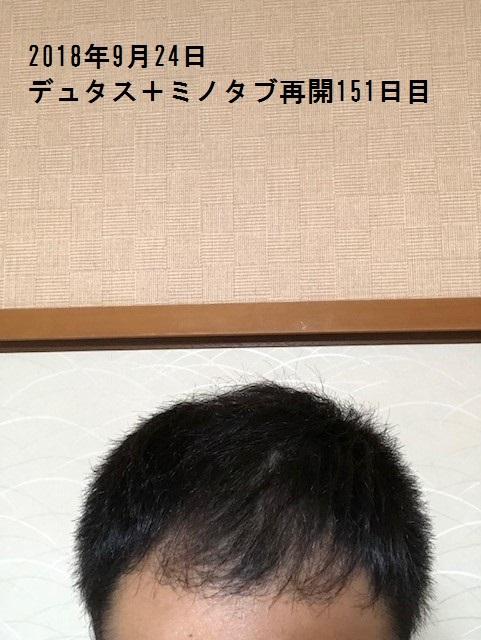 IMG_2515.jpg