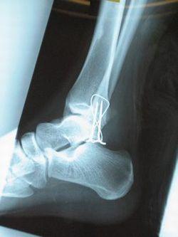 右足関節外果骨折レントゲン写真