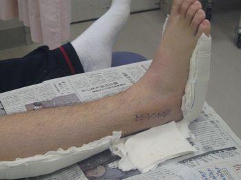 右足関節外果骨折手術後