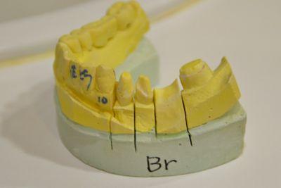 ブリッジの歯形